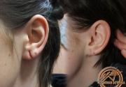 зашивание ушей